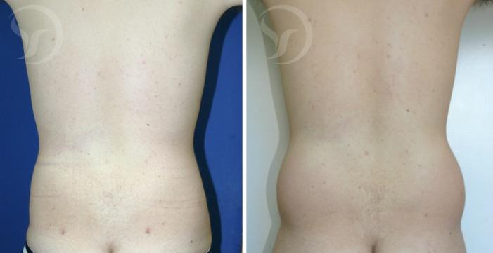 שאיבת שומן לגברים - לפני ואחרי