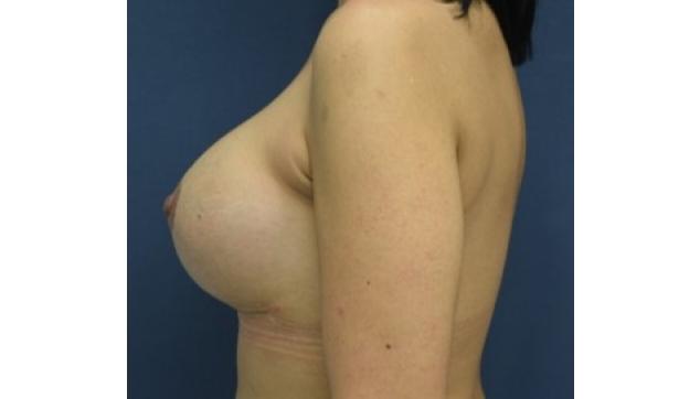 לפני ואחרי החלפתשתלים והרמת חזה עקב צניחה והתרוקנות