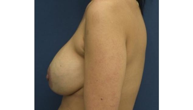 לפני ואחרי החלפת שתלים והרמת חזה עקב צניחה והתרוקנות 2