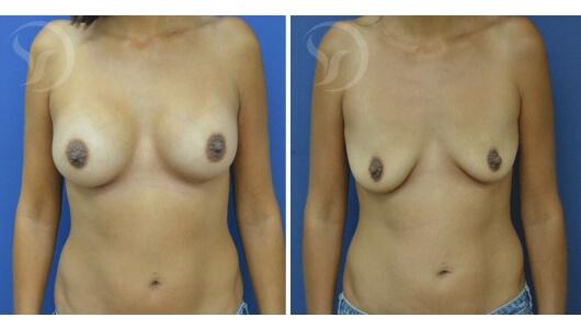 לפני ואחרי ניתוח ללא צלקות