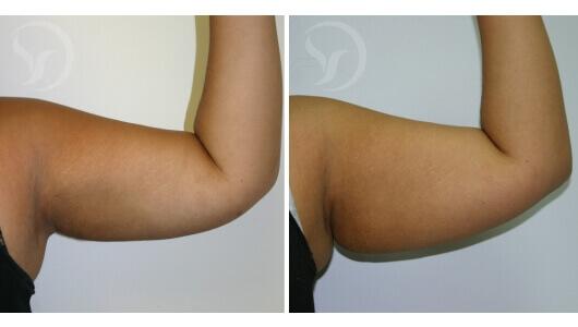 המסת שומן בזרועות