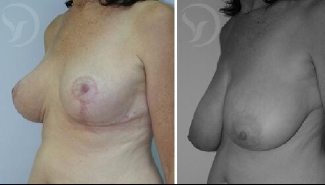 לפני ואחרי ניתוח הקטנת חזה לנשים