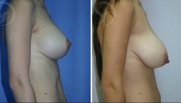 תמונת צד לפני אחרי ניתוח הקטנת חזה