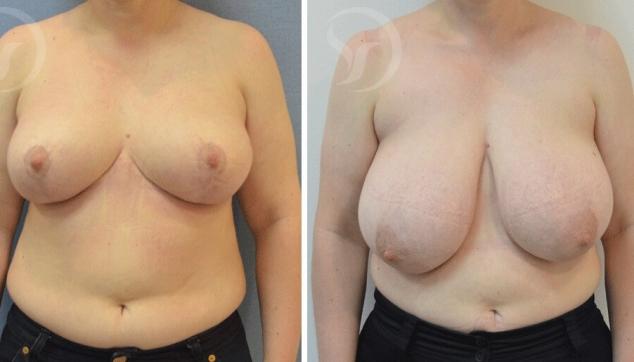 10 תוצאות של ניתוח הקטנת חזה