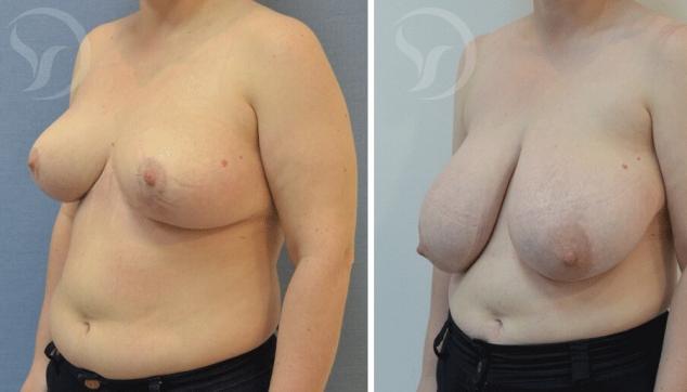 11 חזה גדול שעבר ניתוח הקטנת חזה