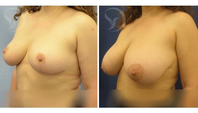 הקטנת חזה תמונה לפני ואחרי הניתוח