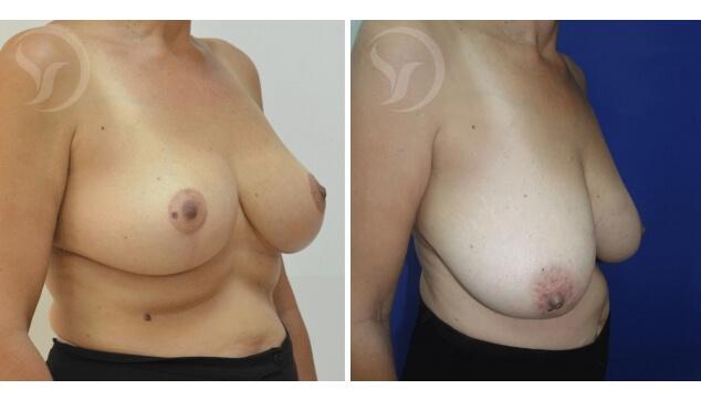 תמונה אחרי ולפני ניתוח הקטנת חזה