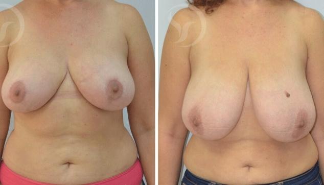 לפני ואחרי ניתוח הקטנה והרמת חזה